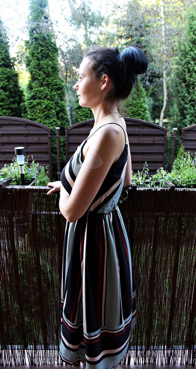 #dress#summerdress#stripes